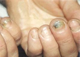 Грибковые повреждения ногтевых пластин.