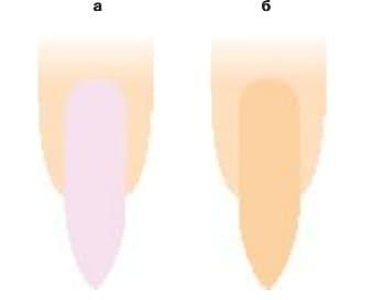 Лак разного цвета на ногтях